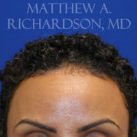 Forehead Reduction Surgery (Hairline Lowering)